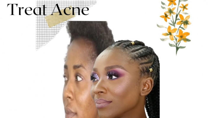 How to Prevent and Treat Acne without Losing Sleep